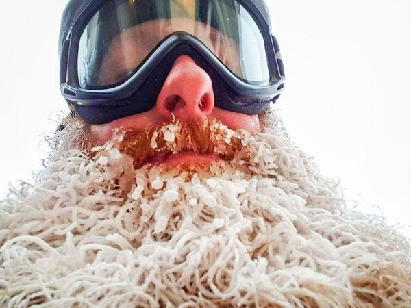 Photo of frozen beard